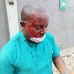 Why Enugu NMA election turned bloody