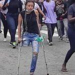 #EndSARS protester gets N4.1m for prosthetic leg